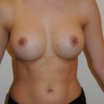 Brystimplantater, samme patient, 300 ml, 4 mdr. efter operation