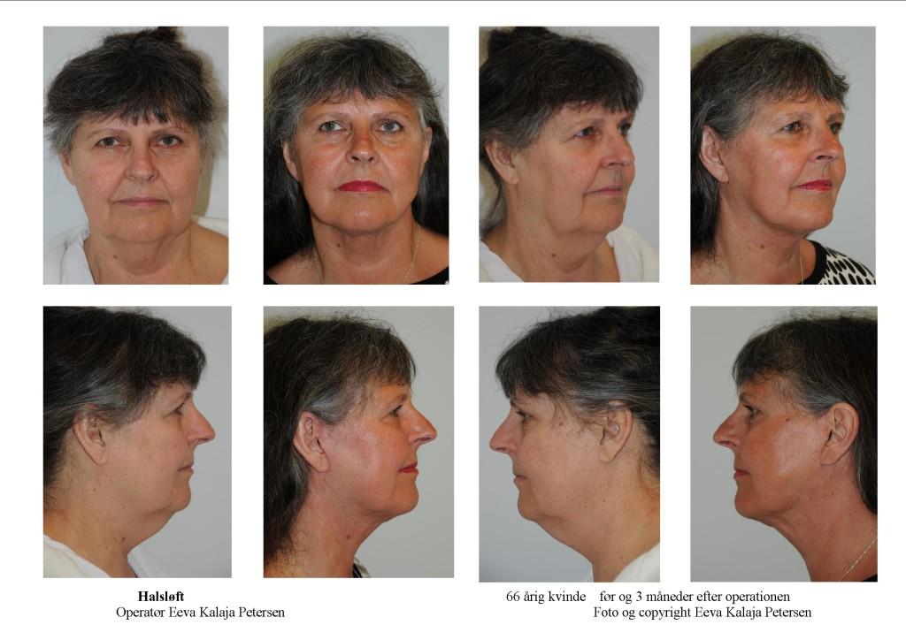 Halsløft - tryk på foto 1 eller 2 gange for detaljer