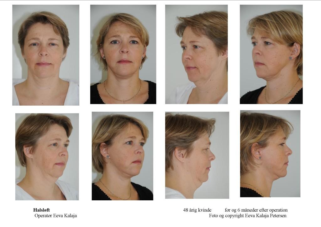 Ansigtsløftning - halsløft tryk på foto 1 eller 2 gange for detaljer