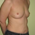 Brystimplantater, Samme patient før operation