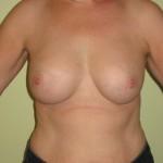 Brystimplantater, samme patient, 250 ml i højre side, 275 i venstre side, 6 mdr. efter operation