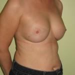Brystimplantater, samme patient, 6 mdr. efter operation