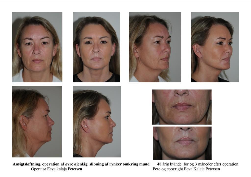 Ansigtsløftning - tryk 1 eller 2 gange på foto for detaljer
