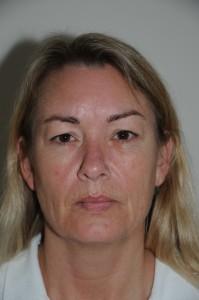 48-årig kvinde. Operation af øvre øjenlåg og slibning af rynker omkring munden