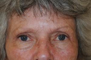 3 mdr. efter øvre øjenlågsoperation