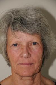 69-årig kvinde, før operation