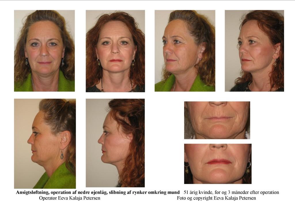 Ansigtsløftning - tryk på foto for detaljer