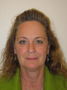 51-årig kvinde. Operation af nedre øjenlåg og slibning af rynker omkring munden