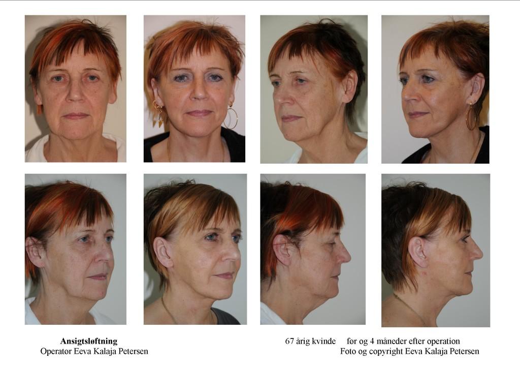 Ansigtsløftning - tryk på foto 1 eller 2 gange for detaljer