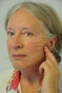 Ansigtsløftning - patienten viser at hun ønsker et mindre løft langs kæberanden
