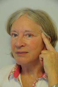 Ansigtsløftning - patienten viser at hun ønsker et større løft af kinder og kæbelinie