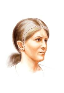 Ansigtsløftning og pandeløft - længere ar